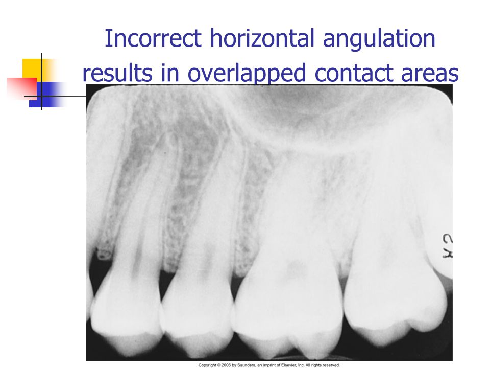 Incorrect horizontal angulation results in overlapped contact areas