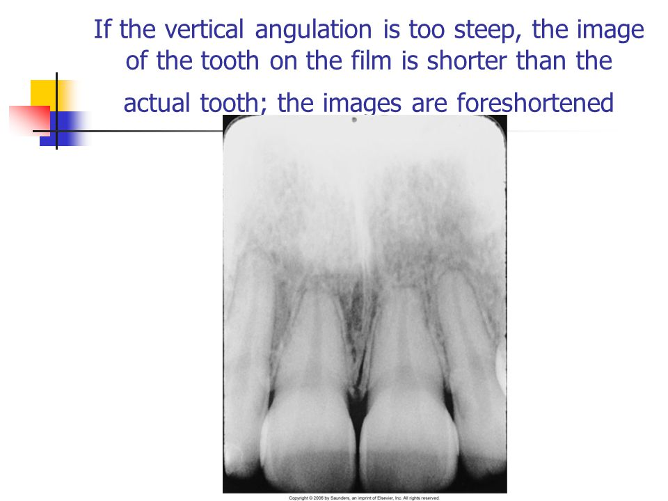 If the vertical angulation is too steep, the image of the tooth on the film is shorter than the actual tooth; the images are foreshortened