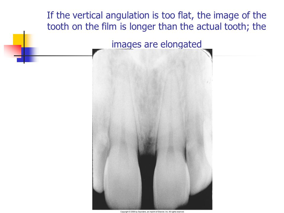 If the vertical angulation is too flat, the image of the tooth on the film is longer than the actual tooth; the images are elongated