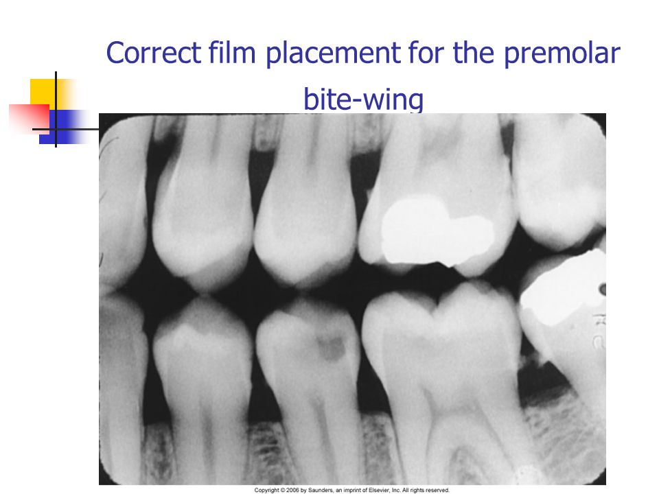 Correct film placement for the premolar bite-wing