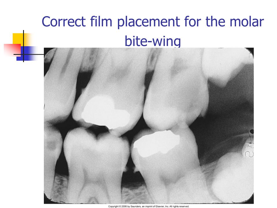 Correct film placement for the molar bite-wing