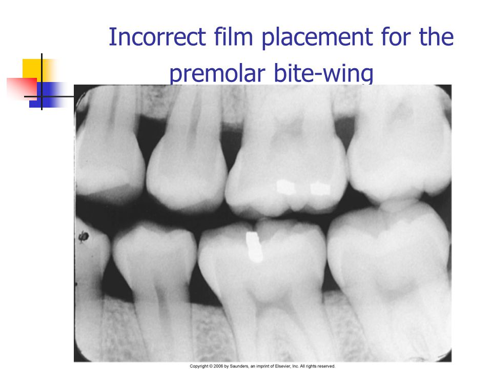 Incorrect film placement for the premolar bite-wing