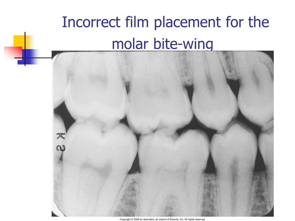 Incorrect film placement for the molar bite-wing