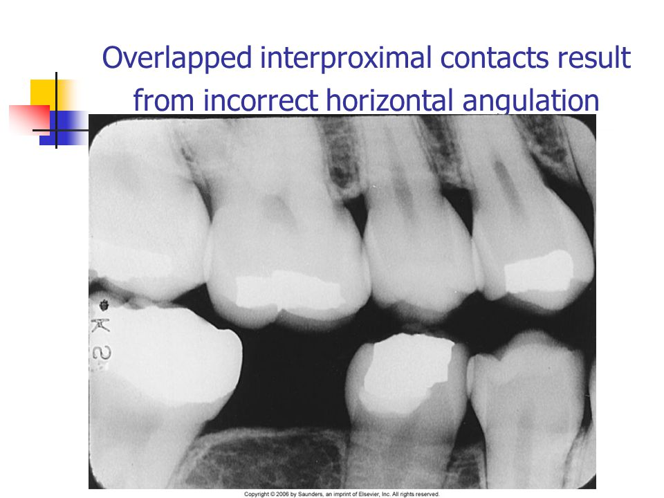 Overlapped interproximal contacts result from incorrect horizontal angulation