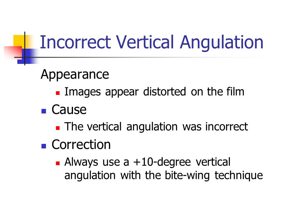 Incorrect Vertical Angulation
