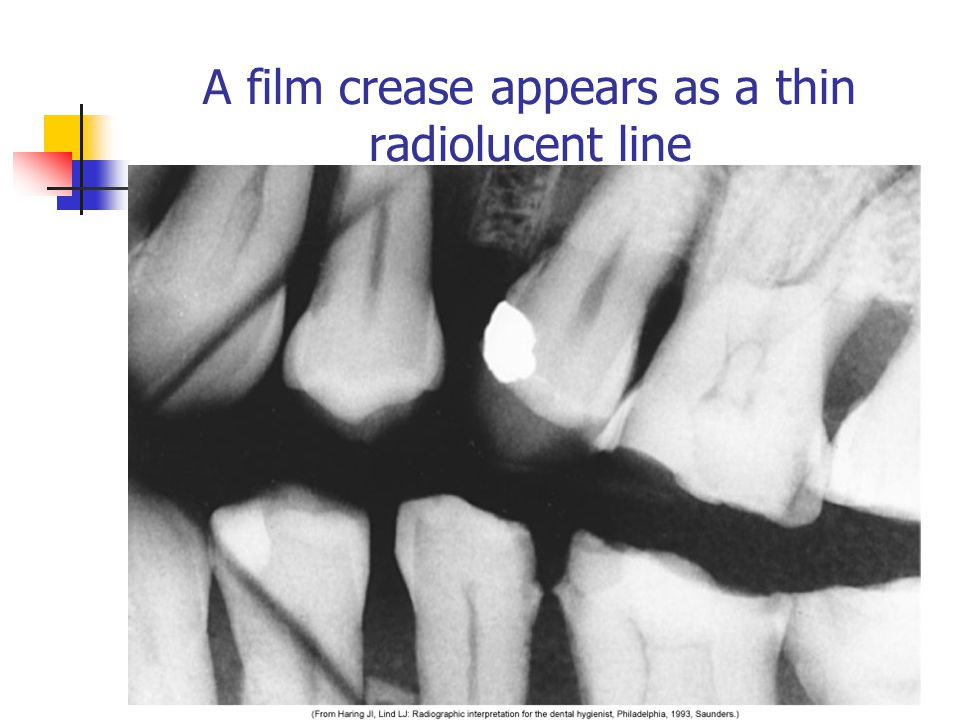 A film crease appears as a thin radiolucent line