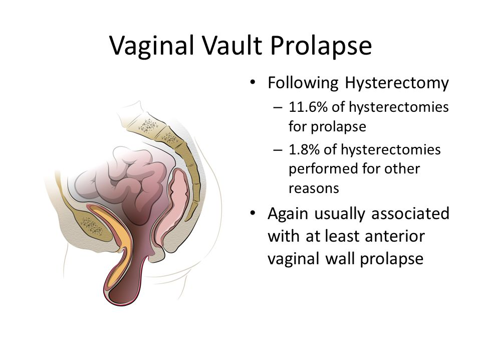 Management Of Vaginal Prolapse