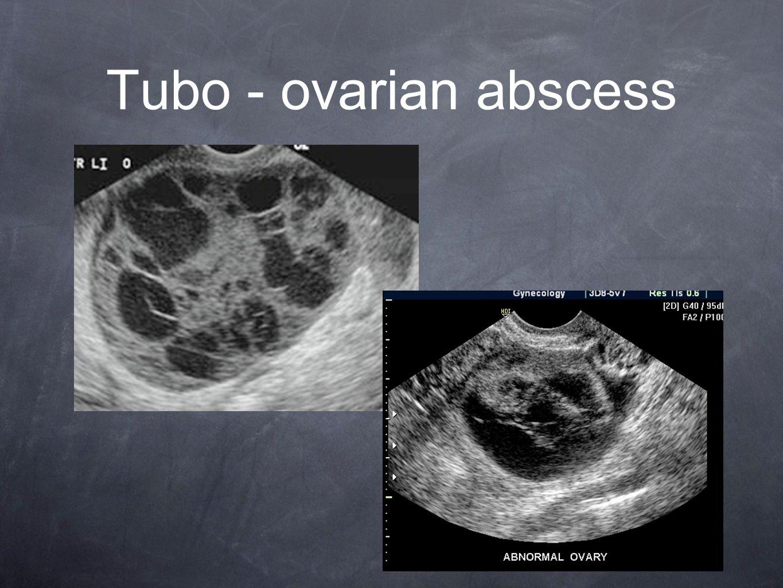 Ovarian abscess 83