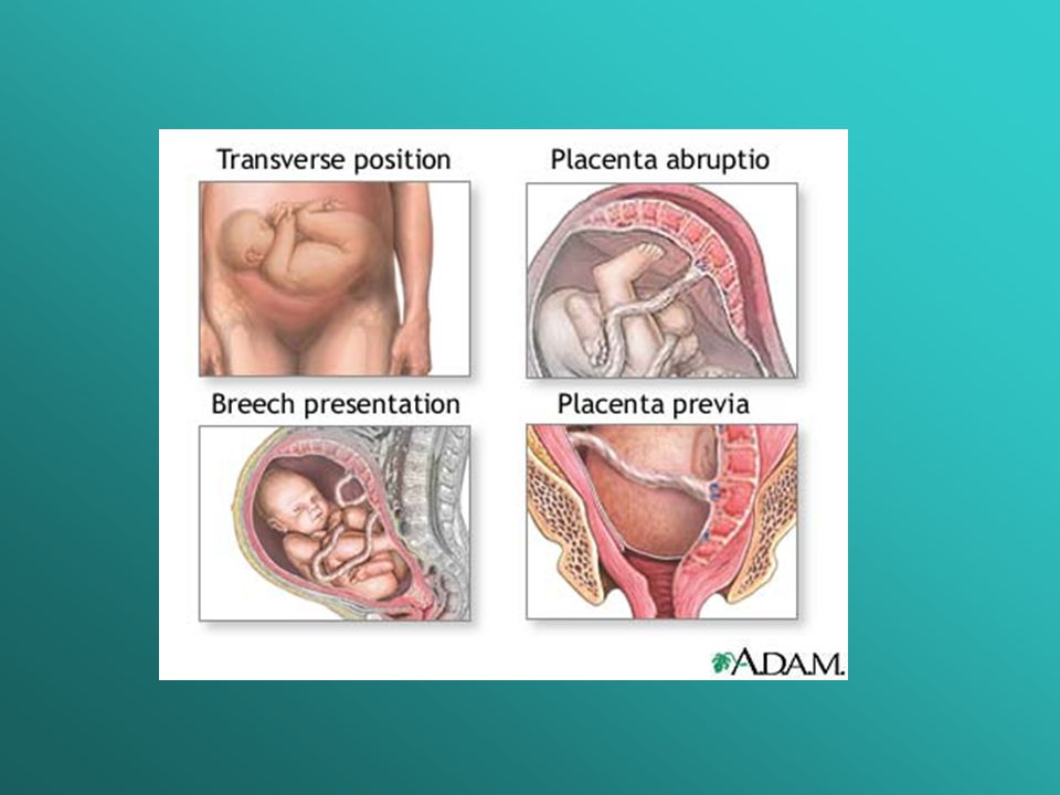 Basic Format Cesarean Section - ppt video online download