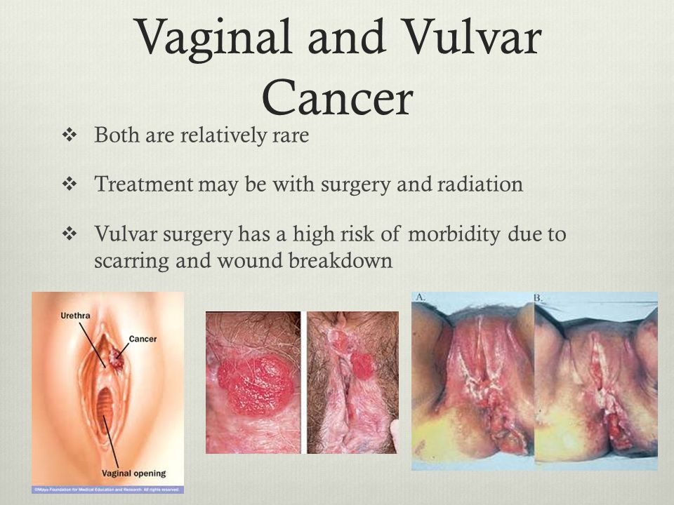 Staging And Grading Of Vaginal Cancer