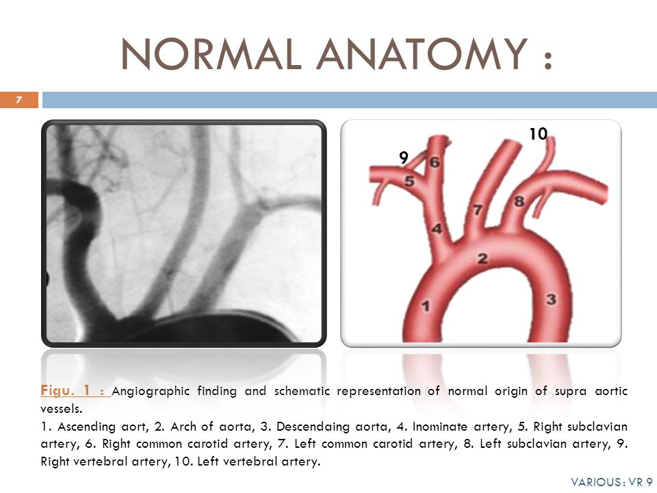 VARIANTS OF AORTIC ARCH : OUR EXPERIENCE - ppt video online download