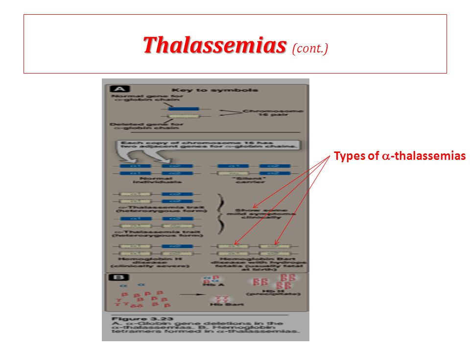 Thalassemias (cont.) Types of a-thalassemias