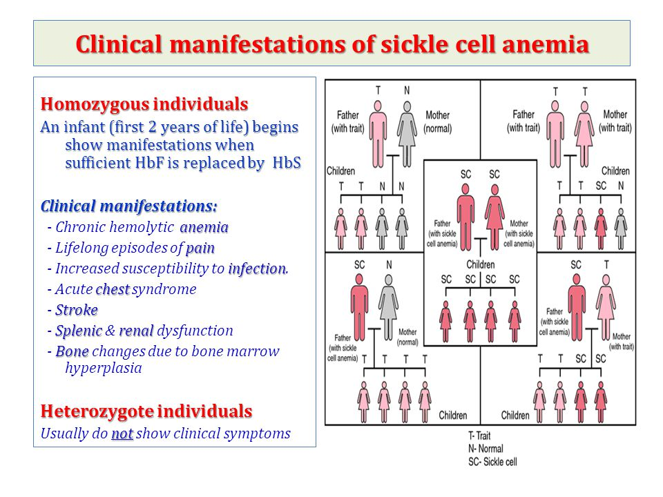 Clinical manifestations of sickle cell anemia