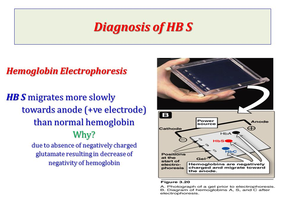 Diagnosis of HB S Hemoglobin Electrophoresis HB S migrates more slowly
