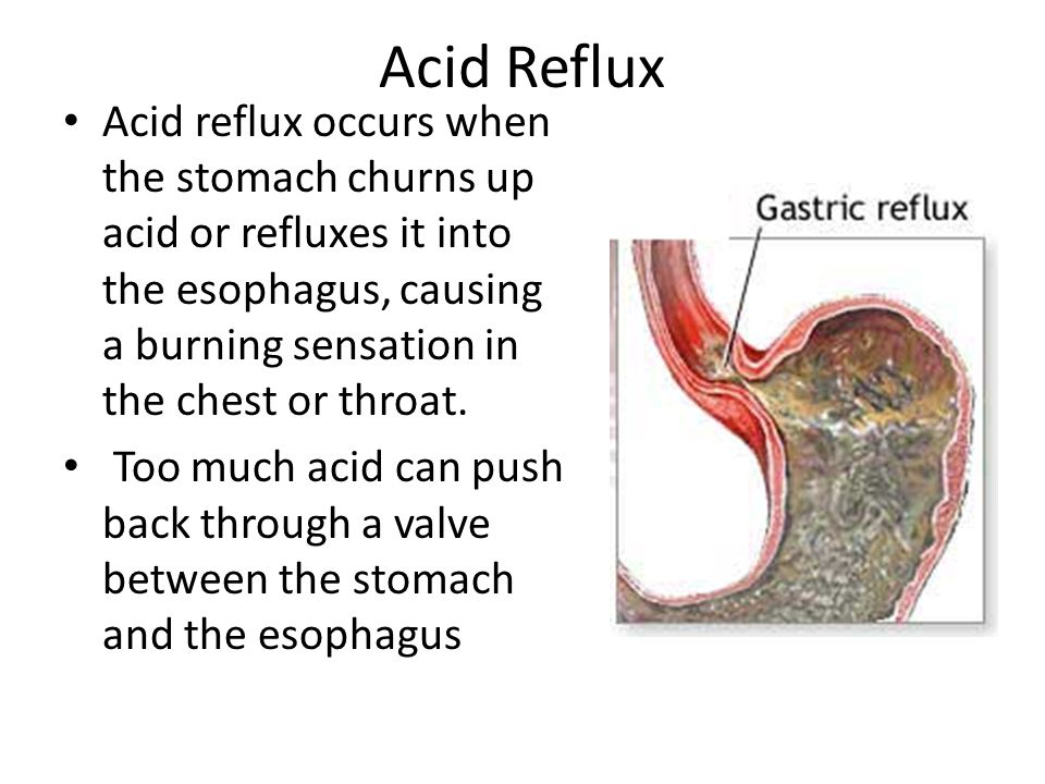 Acid Reflux Acid reflux occurs when the stomach churns up acid or refluxes it into the esophagus, causing a burning sensation in the chest or throat.