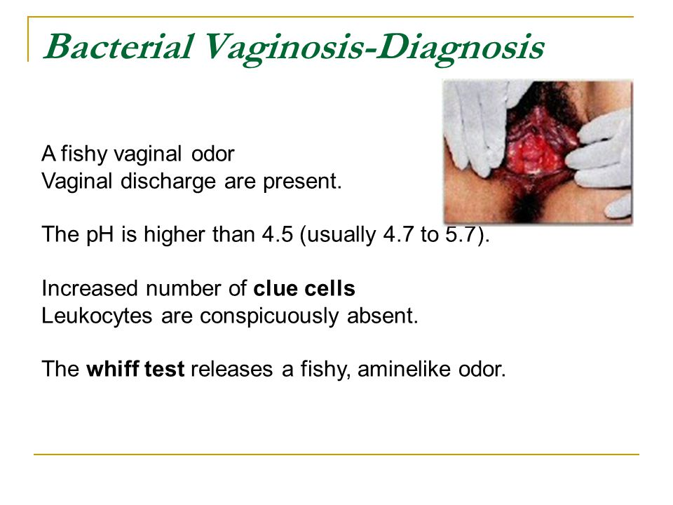 What causes abnormal vaginal discharge