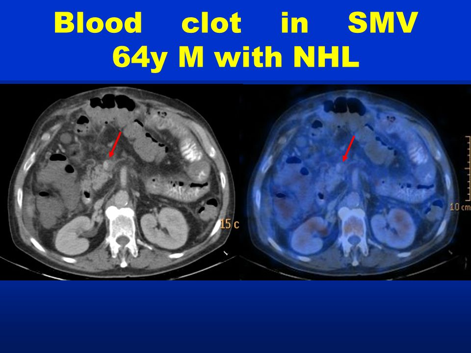 Blood clot in SMV 64y M with NHL