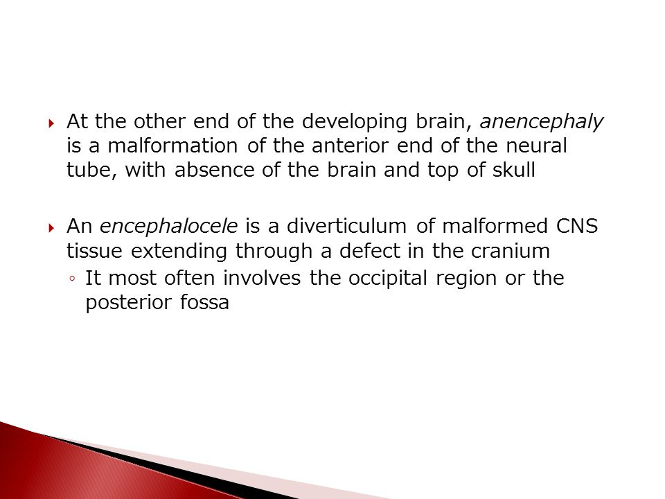 At the other end of the developing brain, anencephaly is a malformation of the anterior end of the neural tube, with absence of the brain and top of skull