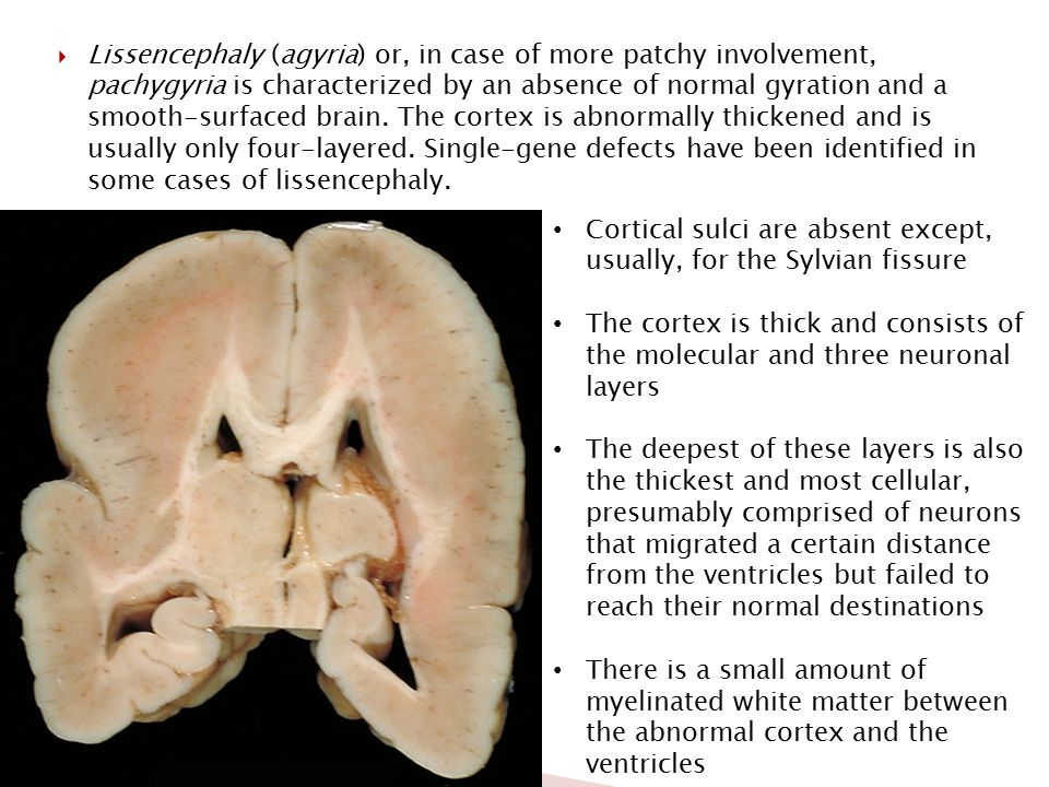 Lissencephaly (agyria) or, in case of more patchy involvement, pachygyria is characterized by an absence of normal gyration and a smooth-surfaced brain. The cortex is abnormally thickened and is usually only four-layered. Single-gene defects have been identified in some cases of lissencephaly.