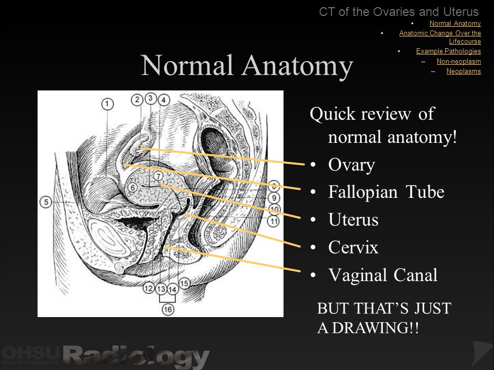 Body CT Modules: CT of the Ovaries and Uterus - ppt download