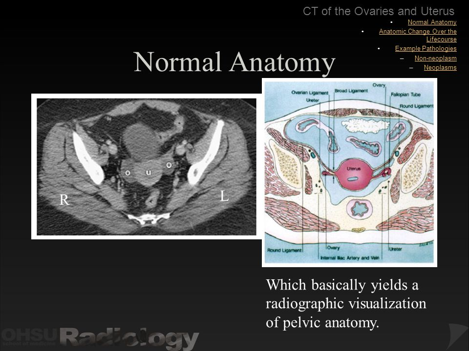 Body Ct Modules Ct Of The Ovaries And Uterus Ppt Download