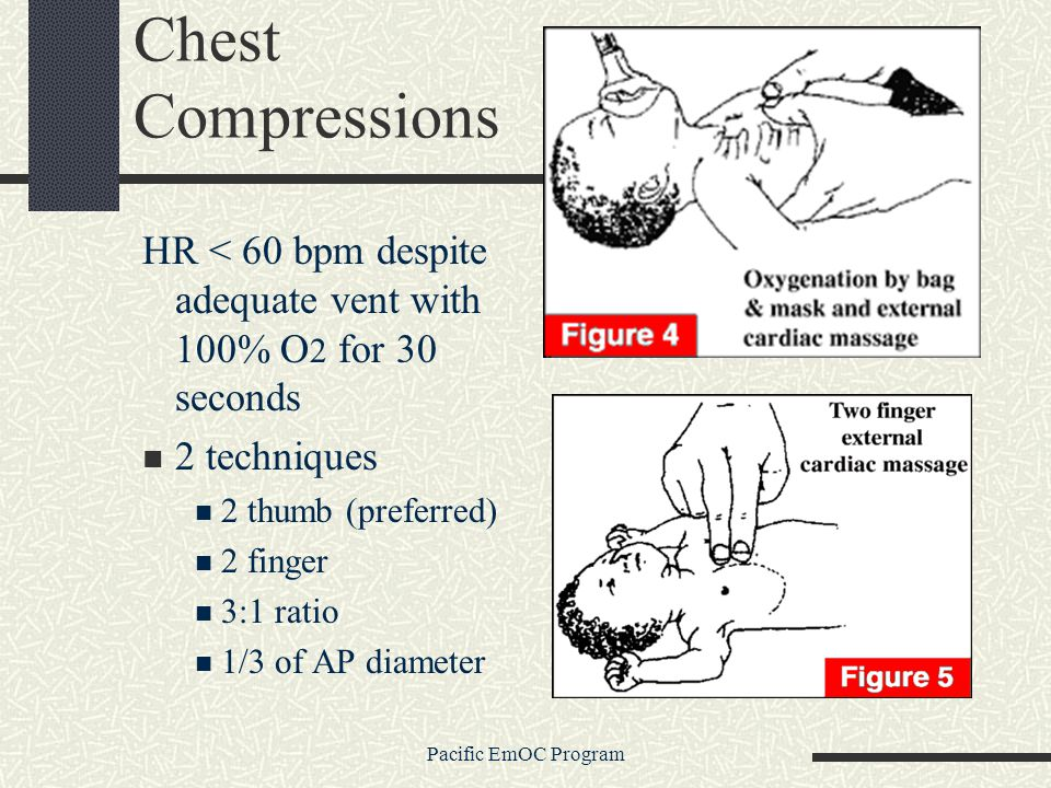 Chest Compressions HR < 60 bpm despite adequate vent with 100% O2 for 30 seconds. 2 techniques. 2 thumb (preferred)