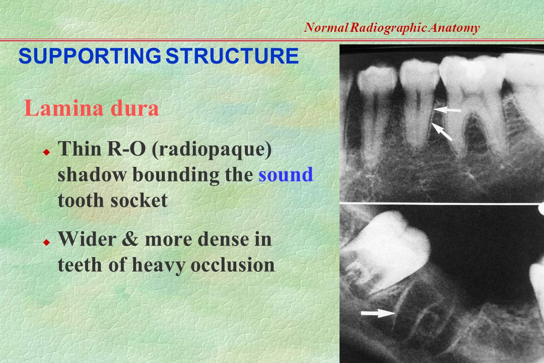 Normal Radiographic Anatomy- Based on Intraoral Films - ppt video ...