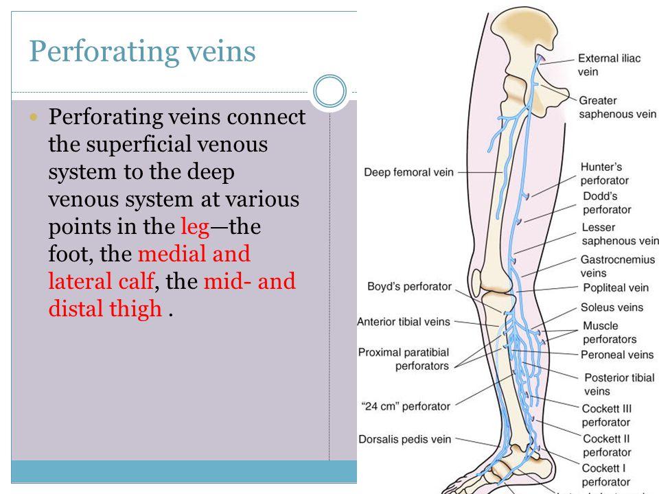 Venous Disease. - ppt download