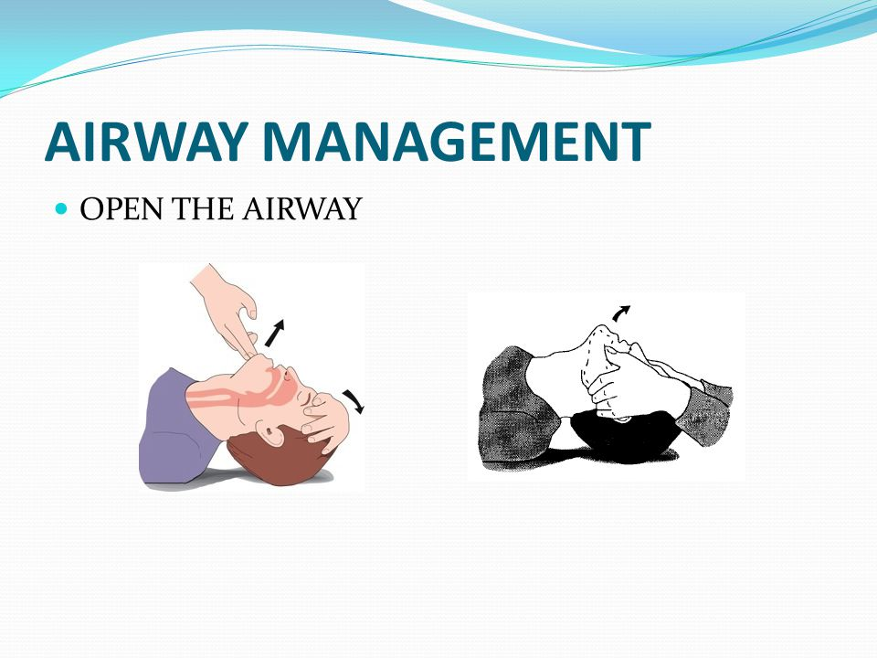 AIRWAY MANAGEMENT OPEN THE AIRWAY