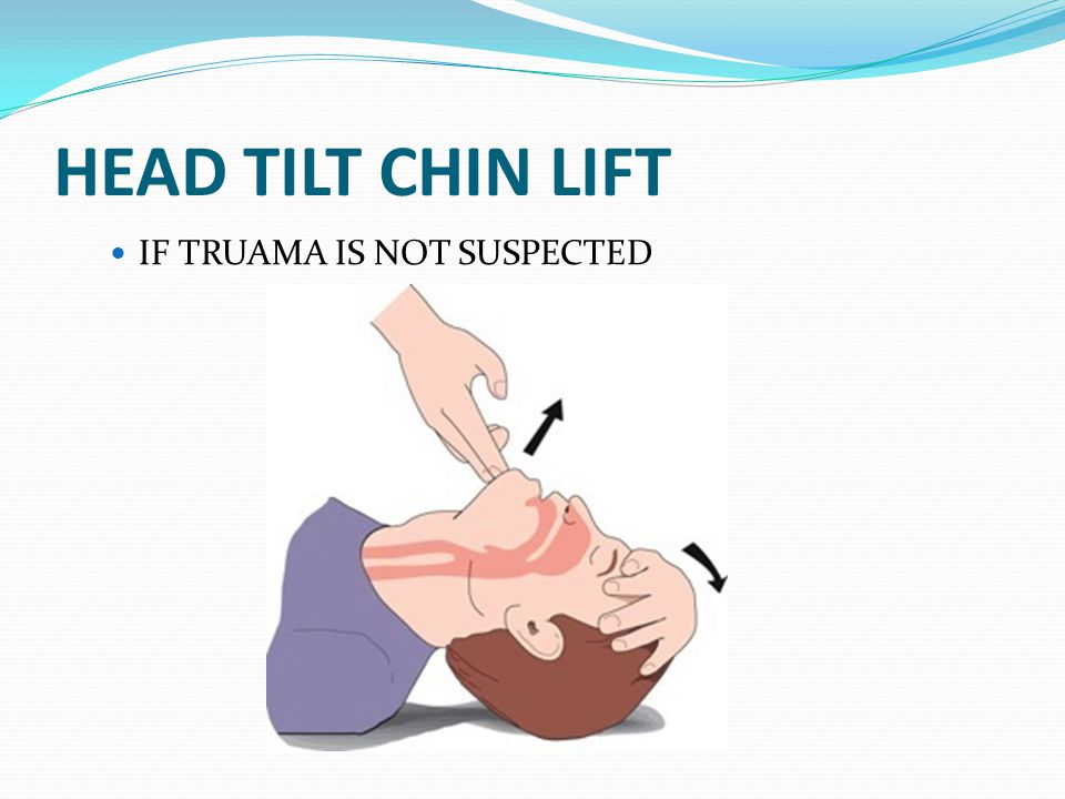HEAD TILT CHIN LIFT IF TRUAMA IS NOT SUSPECTED