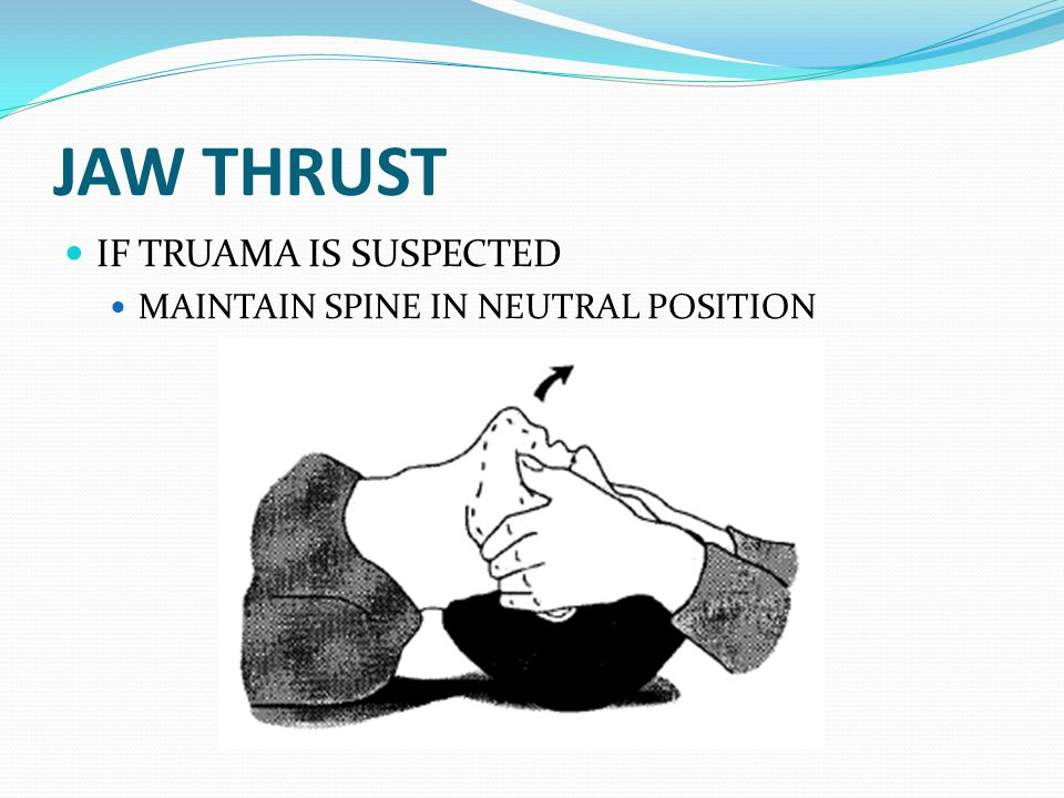 JAW THRUST IF TRUAMA IS SUSPECTED MAINTAIN SPINE IN NEUTRAL POSITION