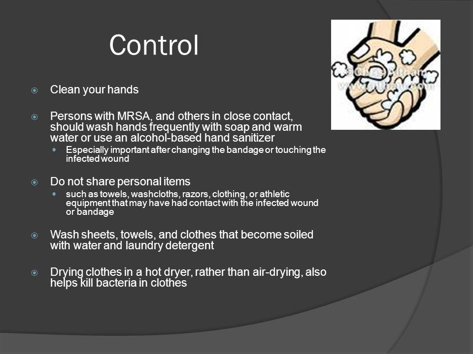 14 Control
