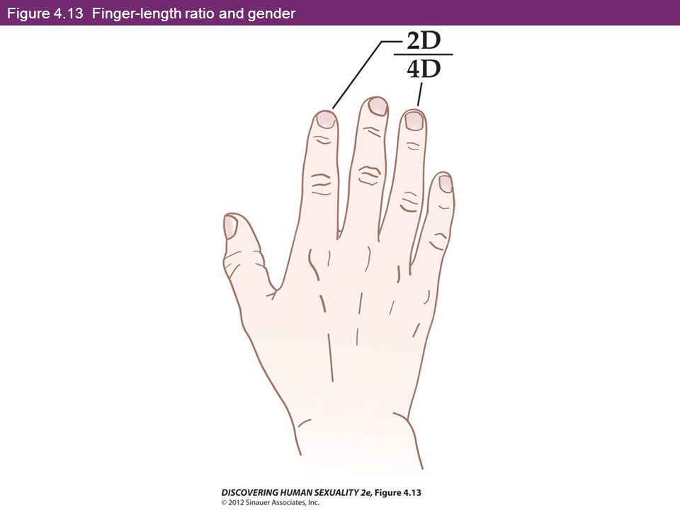 2d 4d ratio transsexual surgery