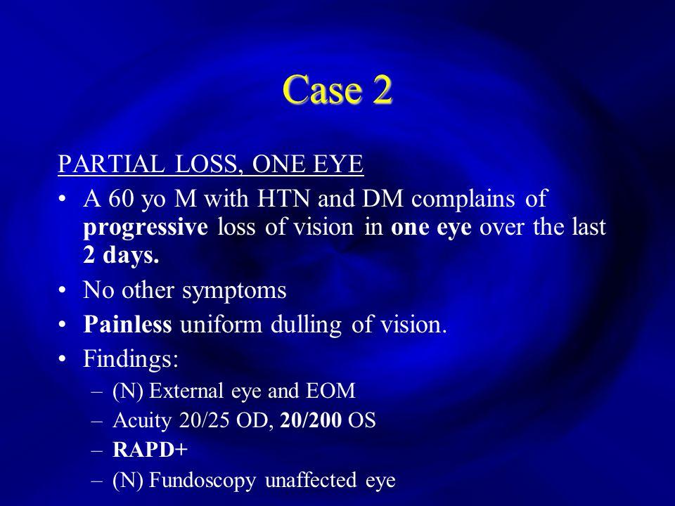 Vision Loss Khader Mfarwan Ppt Download. Case 2 Partial Loss One Eye. Worksheet. The Eye And Vision Worksheet 2 At Mspartners.co