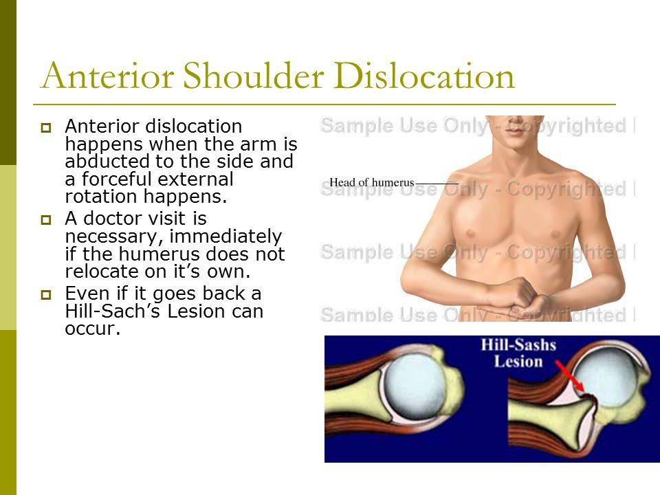 Shoulder Anatomy Ppt Video Online Download