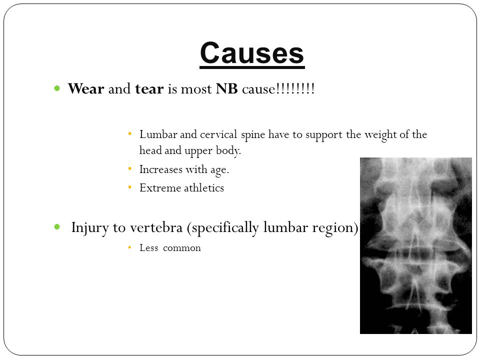 Causes Wear and tear is most NB cause!!!!!!!!