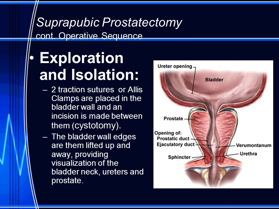 Gu Procedures Operative Sequence Ppt Video Online Download