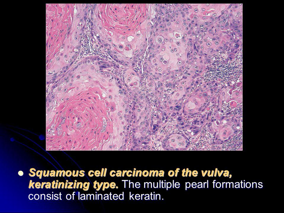 Minute cancer cells in vulva cancer