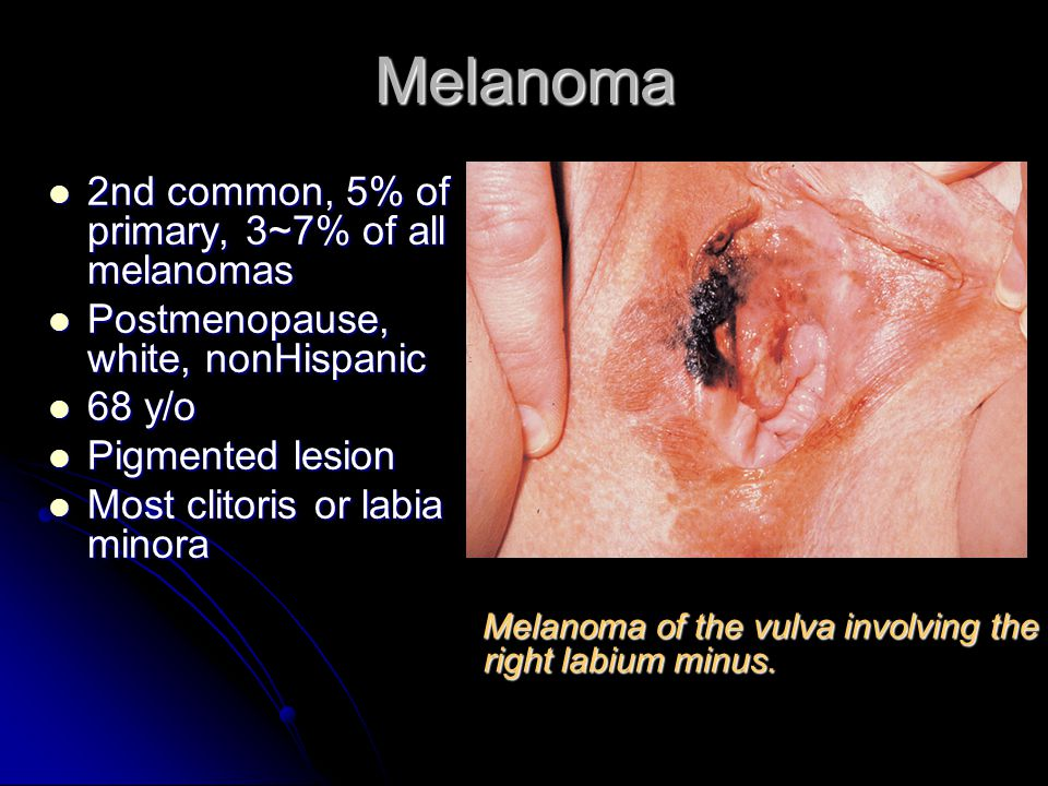Pre-cancer and malignant disease of vulva - ppt video online