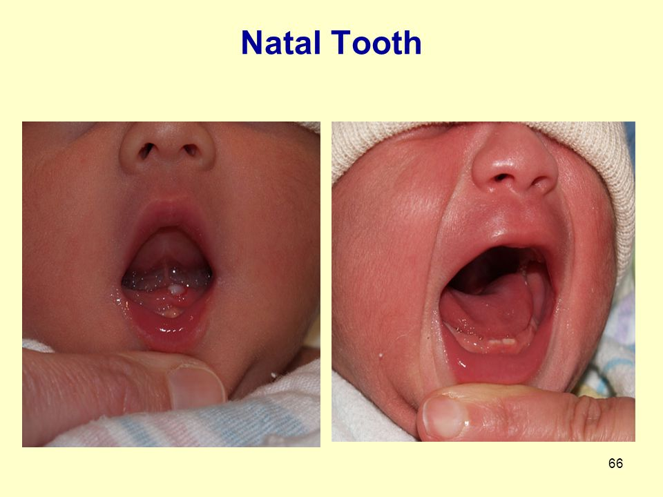 Natal Tooth