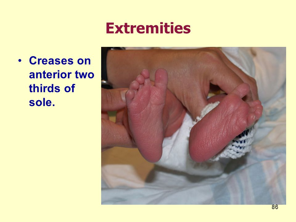 Extremities Creases on anterior two thirds of sole.