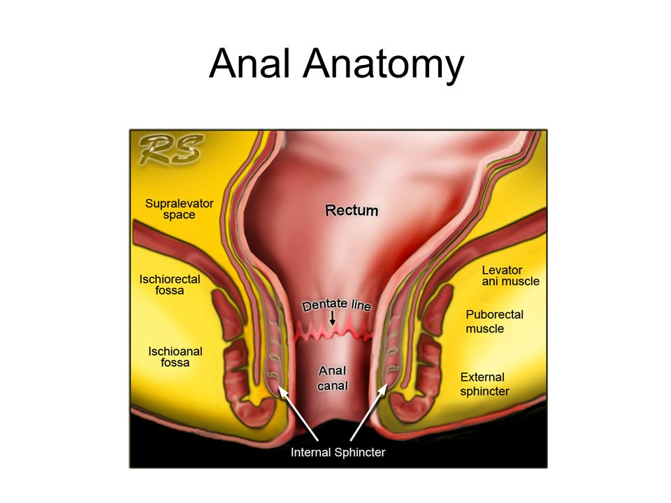 Anorectal Malformation Imperforate anus - ppt video online download