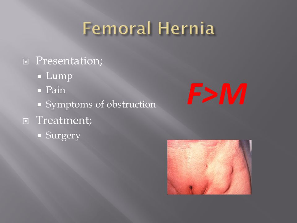 Surgical Treatment Femoral Hernia — TTCT