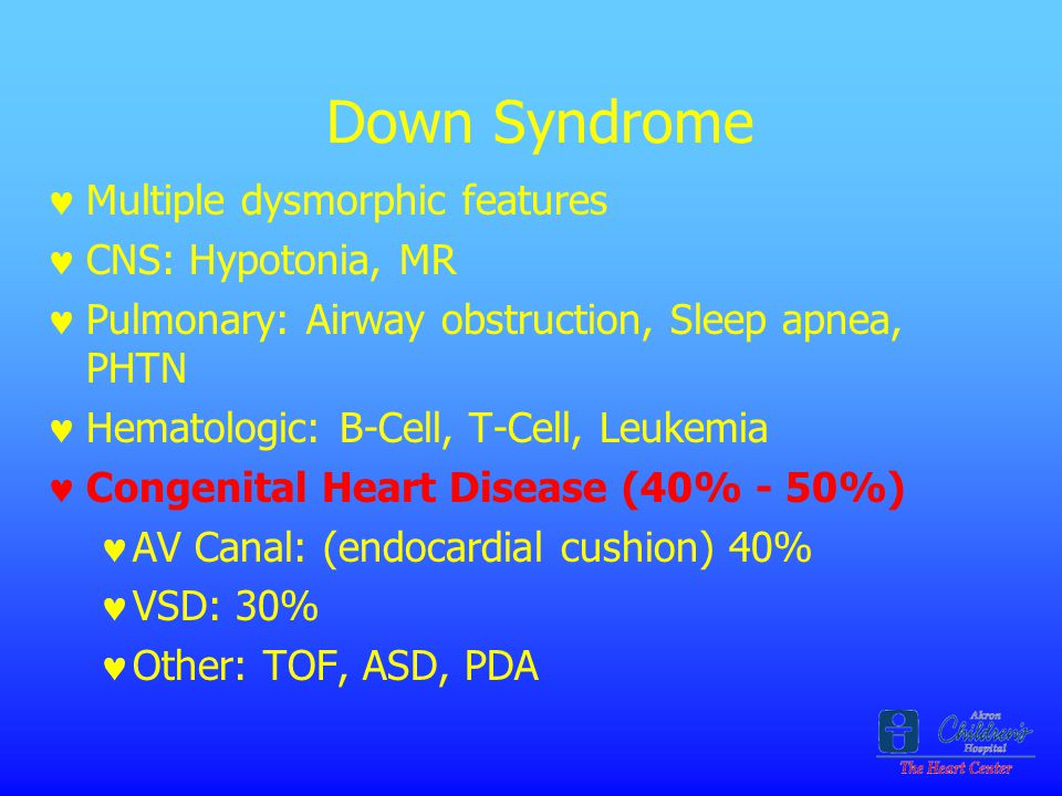 Down Syndrome Multiple dysmorphic features CNS: Hypotonia, MR