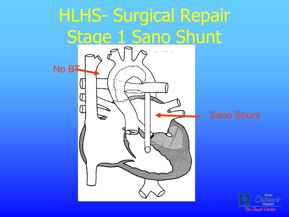 HLHS- Surgical Repair Stage 1 Sano Shunt