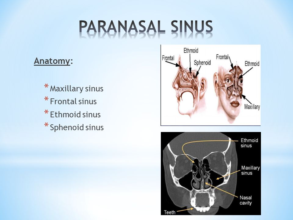 NORMAL VARIANTS OF CT PARANASAL SINUSES - ppt video online download