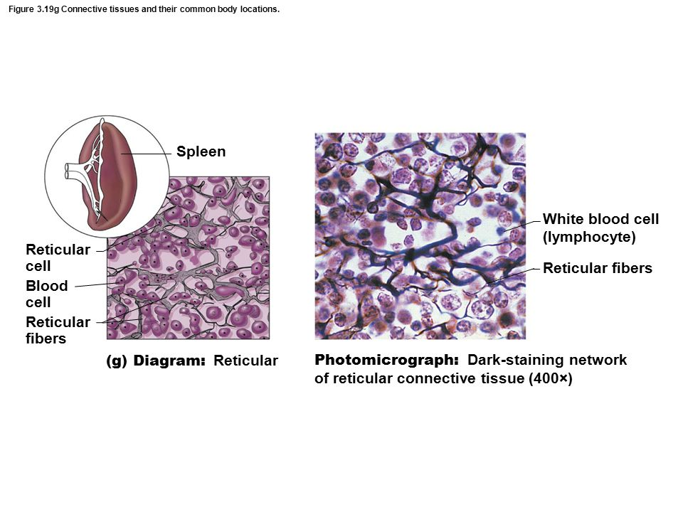 Figure 3.19g Connective tissues and their common body locations.