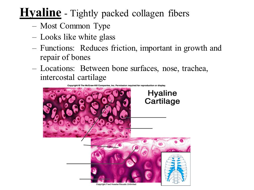 Hyaline - Tightly packed collagen fibers