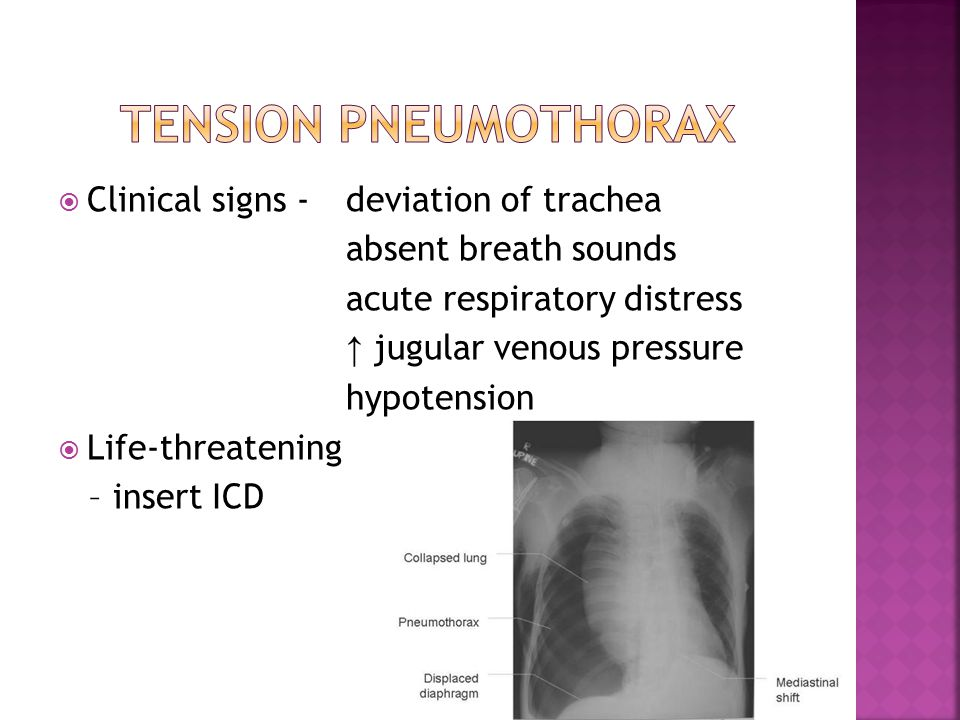 Tension pneumothorax Clinical signs - deviation of trachea