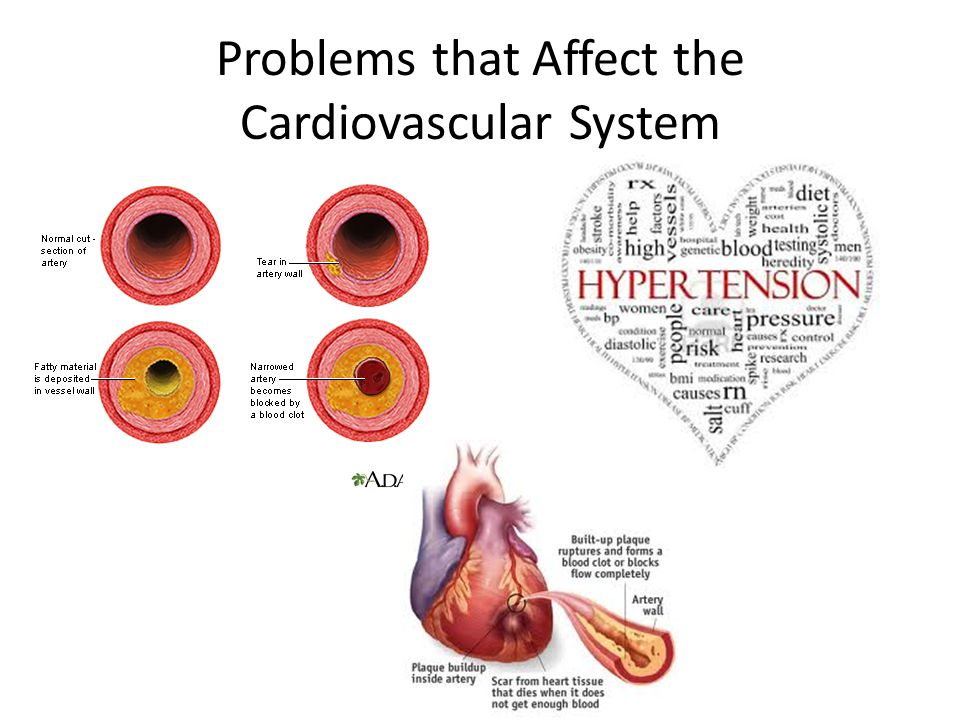Problems that Affect the Cardiovascular System